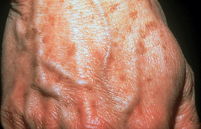 anti-aging-skin-care-loss-fullness-hand.jpg