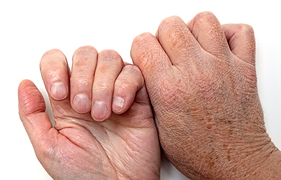 anti-aging-skin-care-rough-hands.jpg