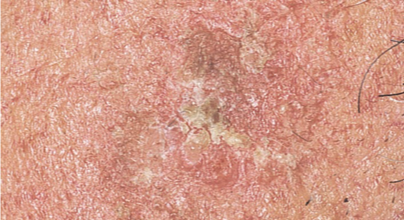 Actinic keratoses on the scalp